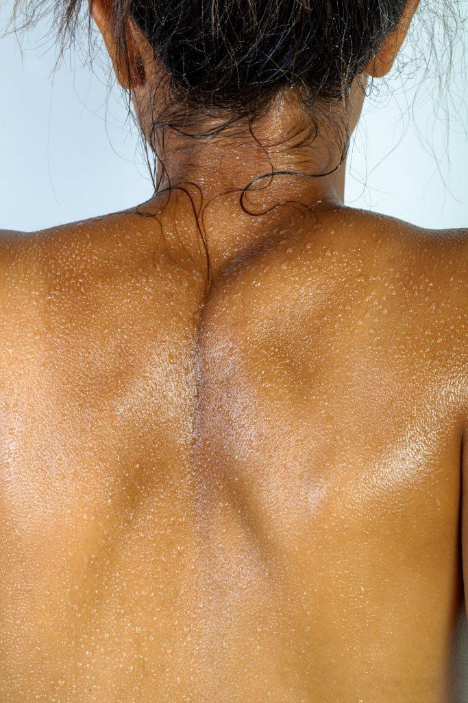 Wat is een nek hernia? Eén van de veelvoorkomende letsels