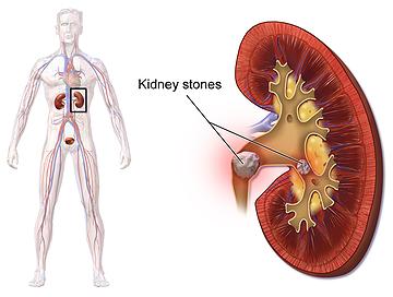 nierstenen symptomen rugpijn